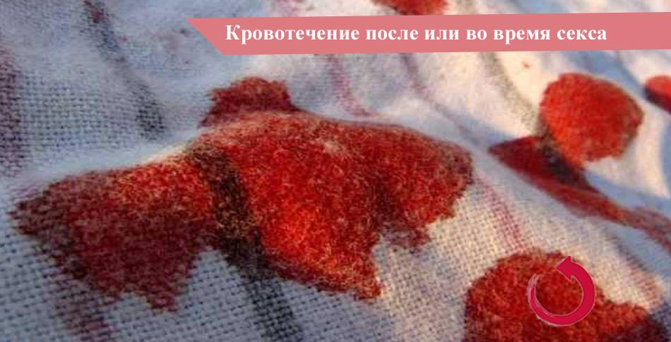 Кровотечение после или во время секса